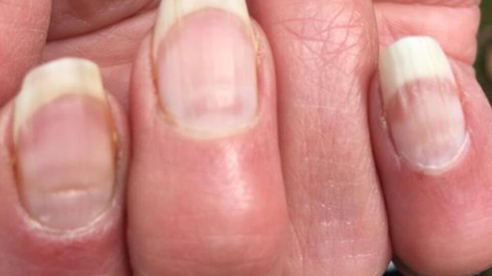 Британский профессор объяснил последствия 'ковидных ногтей'